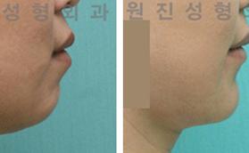 凸嘴矫正手术
