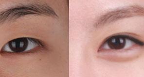 眼部整形 娇媚手术