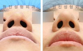 鼻尖塑造手术