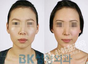 韩式改脸型手术前后