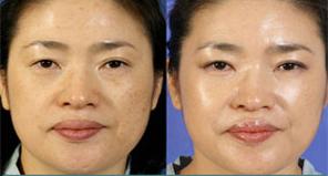 面部干细胞脂肪移植