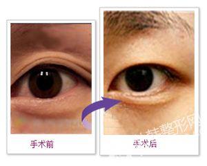 双眼皮变单眼皮