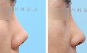 鼻子修复手术
