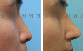 男性鼻手术