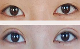 埋线法双眼皮成形术