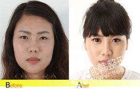 隆鼻手术前后对比