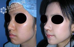 肋软骨鼻部整形前后对比