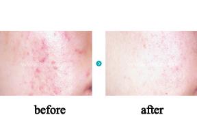 痘疤治疗前后对比