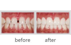 瓷贴面美白牙齿