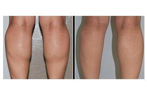 注射瘦腿对比照