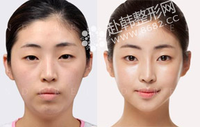 Vline+颧骨整形+眼鼻整形前后对比照
