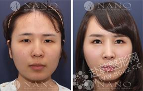 面部整形对比图