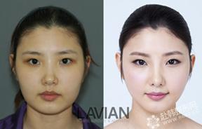 韩式瘦脸法对比照
