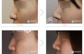 鼻部整形前后对比照片