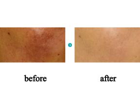 祛斑治疗前后对比