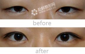韩式双眼皮对比照