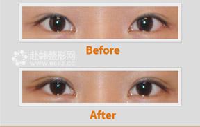 埋线双眼皮修复
