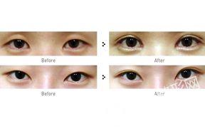 双眼皮手术前后对比
