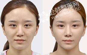 隆鼻+面部脂肪填充前后对比照
