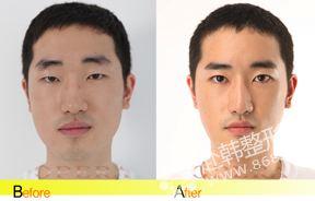 脸颊脂肪填充前后对比