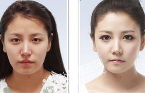 面部整形对比照