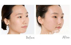 下颌角整形前后对比照