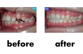 重牙矫正对比照