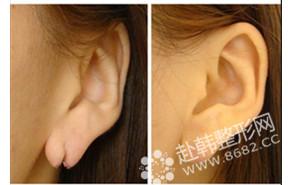 残耳整形对比照