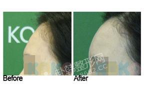 额头脂肪填充手术对比照