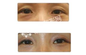 眼部凹陷治疗对比照