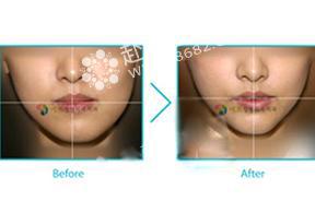 面部不对称手术对比照