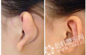 耳部整形对比照