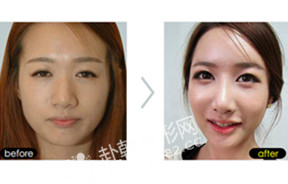全脸整形对比照