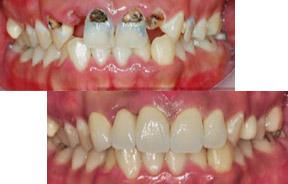 虫牙牙齿矫正前后对比照