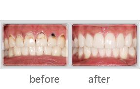 牙齿美白贴片