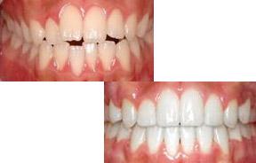 前突牙齿矫正前后对比照