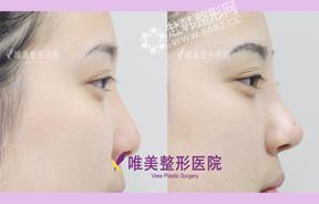 矮鼻矫正前后对比照
