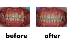 牙齿矫正对比照