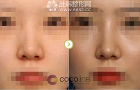 非手术隆鼻