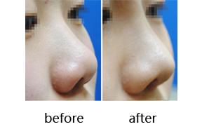 隆鼻前后对比