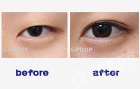 眼部整形对比照