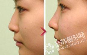 隆鼻手术对比照