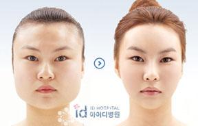 V脸整形前后对比照片