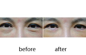 下眼睑手术前后对比