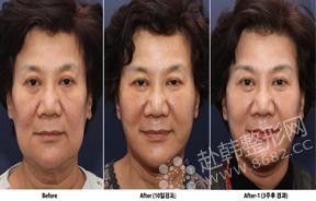 面部提升对比照