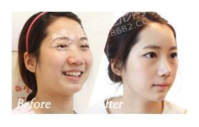 下颌角整形手术对比照