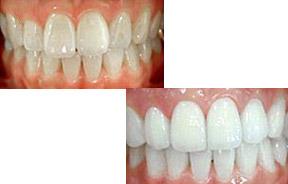 牙齿美白前后对比照