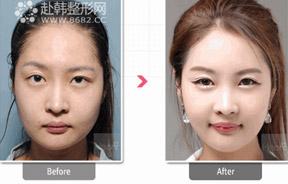 脂肪移植、鼻整形