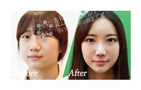 面部轮廓整形手术对比照