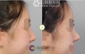 隆鼻和额头组合手术